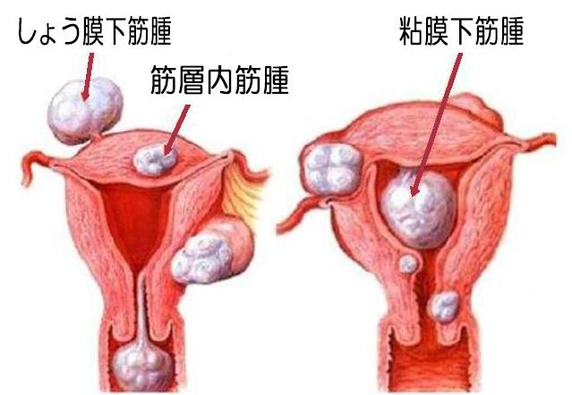 筋腫イラスト1